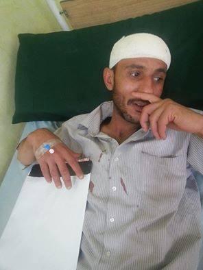 مجهولون يعتدون بالضرب على الصحفي السراجي في العاصمة صنعاء