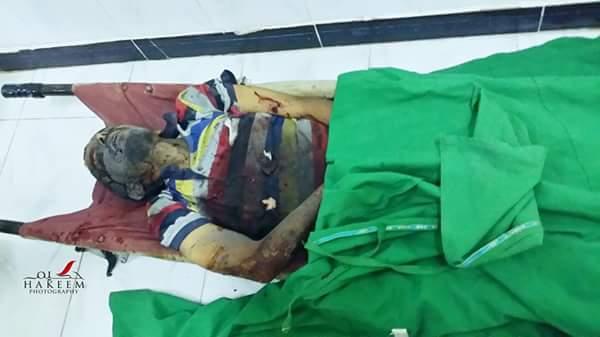 تعز: مجزرة جديدة ضد المدنيين بعد ساعات قليلة من جلسة لمجلس الأمن الدولي حول اليمن