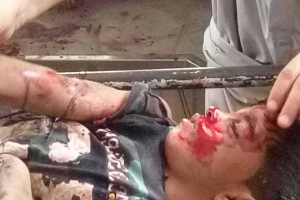 الضالع: إصابة طفل في إنفجار لغم زرعته مليشيات الحوثي وصالح شمال قعطبة