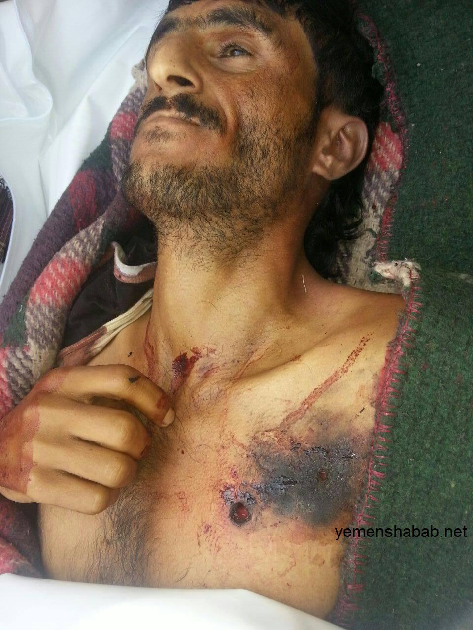 الضالع: مليشيا الحوثي وصالح تقتل مواطن بتهمة التخابر مع المقاومة غرب قعطبة