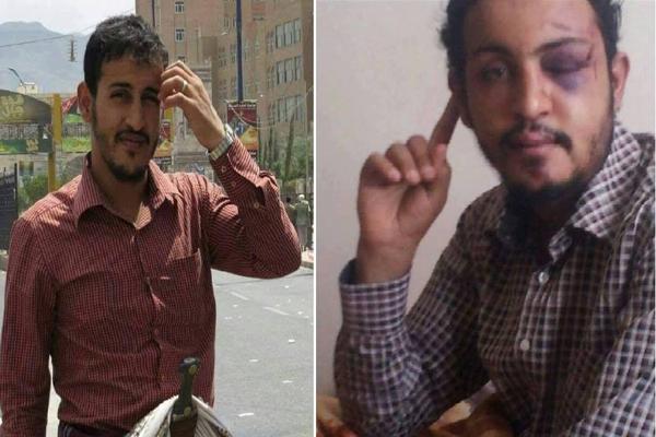 """تعذيب المواطن أحمد الحميقاني بطريقة وحشية بسجون"""" الحزام الأمني"""" بعدن"""