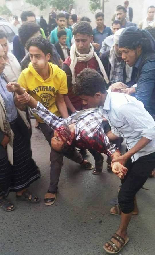سقوط قتيلان إثر اشتباكات بينهما أمام أحد مكاتب البريد في العاصمة صنعاء