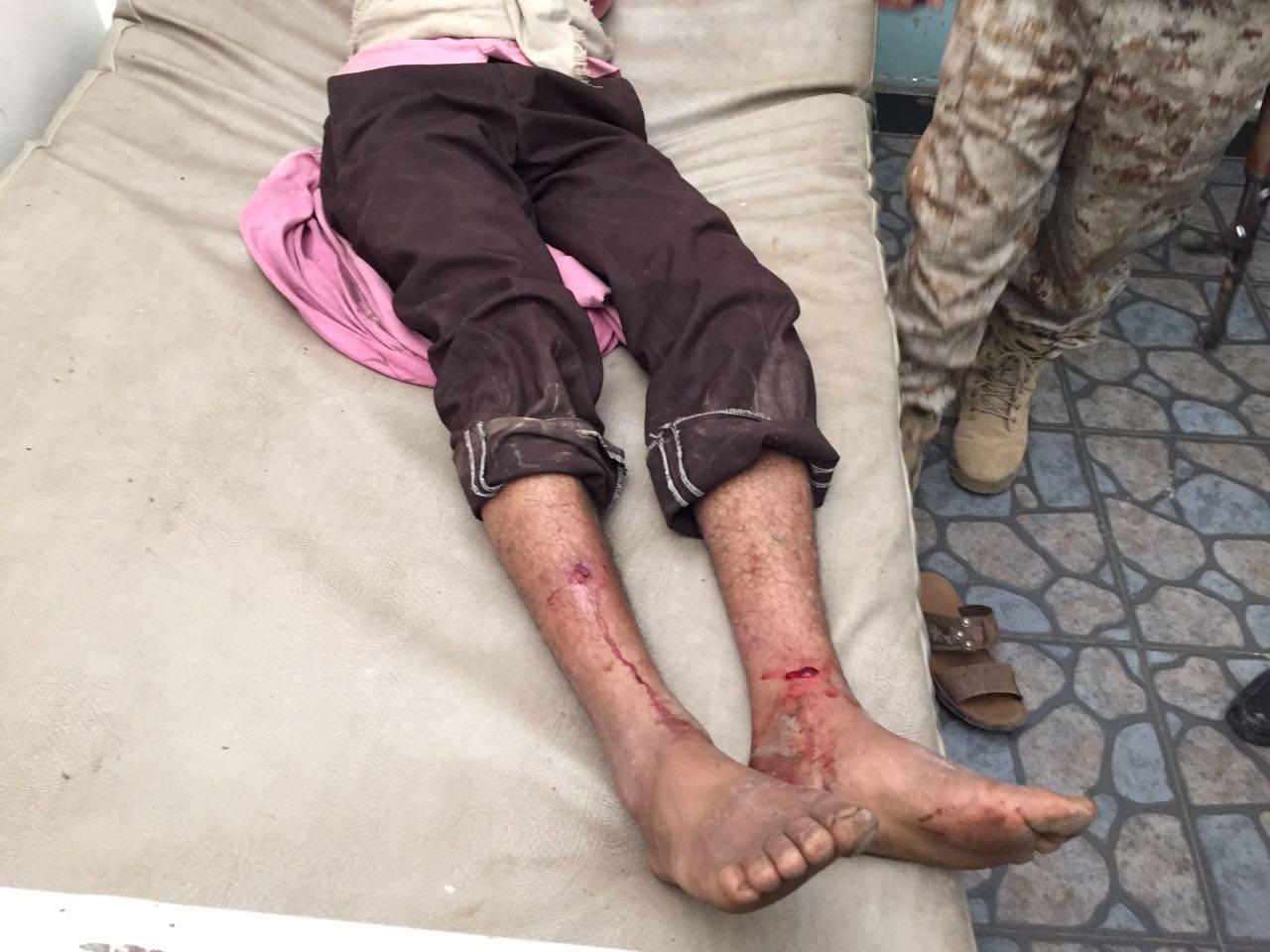 الضالع: إصابة مواطن برصاص قناص حوثي شمال مريس