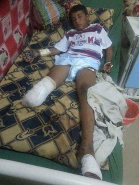 الضالع: مليشيات الحوثي-صالح ترتكب نحو (120) انتهاكا في يناير