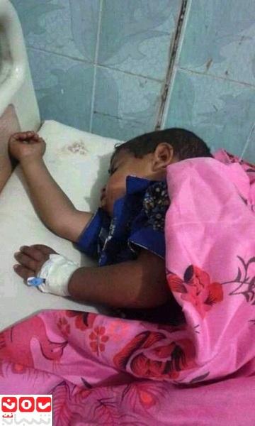 مسؤول أممي: أعداد المصابين بالكوليرا في اليمن تفوق الأرقام المعلنة