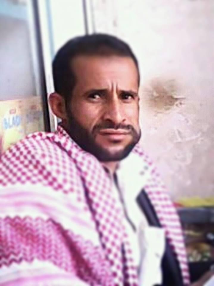 ميليشيات الحوثي تداهم منزل ناشط سياسي بعمران