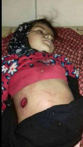 """الضالع: تقرير يرصد إنتهاكات ميليشيات الحوثي والمخلوع بحق المدنيين في """"مريس"""""""