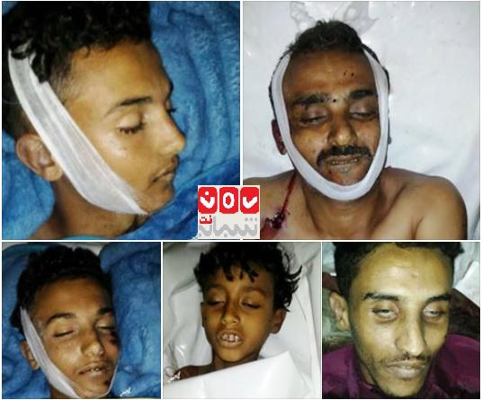 تعز: مقتل أربعة مدنيين وإصابة آخرين برصاص مسلحين مجهولين