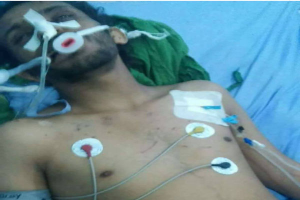 إب: وفاة مختطف بعد أيام على خروجه من سجون الحوثيين بذمار