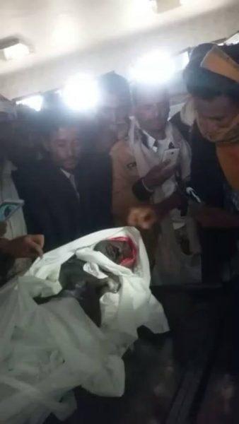 إب: الكشف عن تفاصيل مروعة لتعذيب مختطف حتى الموت في سجون الحوثيين
