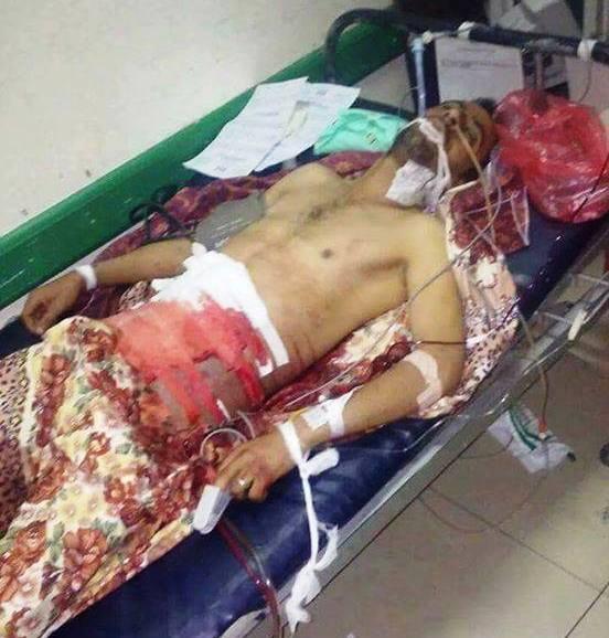 إب: مقتل مواطن وإصابة آخرين برصاص حوثيين بمذيخرة بينهم أم مختطف