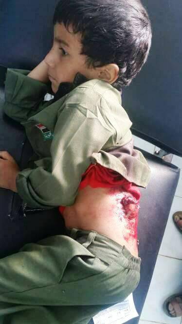 إصابة طفلان نتيجة إطلاق الحوثيون صاروخ كاتيوشا على مدينة مأرب