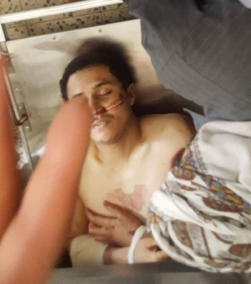 البيضاء: مقتل مواطن وإصابة آخر برصاص الحوثيين في حادثتين منفصلتين