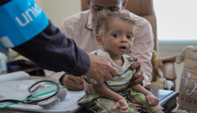 اليونيسف: 50% من إصابات الكوليرا في اليمن أطفال ما دون 15 سنة