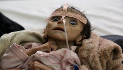 اليونيسف: اليمن أسوأ مكان فى وجه الأرض للأطفال وأكثر من 11 مليون طفل بحاجة للمساعدات