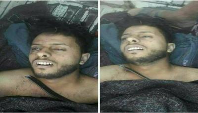 بسبب صورة صالح.. مليشيا الحوثي تقتل سائق باص في مدينة إب