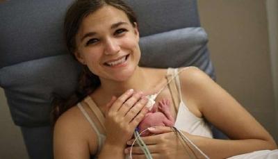 الطفلة المعجزة.. ولدت بوزن أقل من 400 غرام بعد 21 أسبوع من الحمل  (صور)