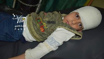 تعز: إصابة خمسة مدنيين بقصف للحوثيين على حي سكني