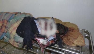 """مقتل مدني وإصابة آخرين في قصف للميليشيات على سوق """"قانية"""" في البيضاء (صور)"""