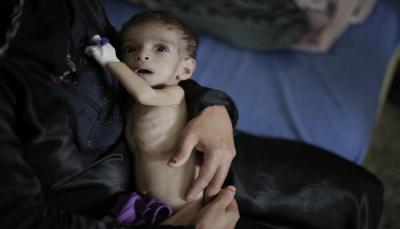 الغذاء العالمي: الحرب ضاعفت معاناة أطفال اليمن و2 مليون طفل يعانون من سوء التغذية الحاد
