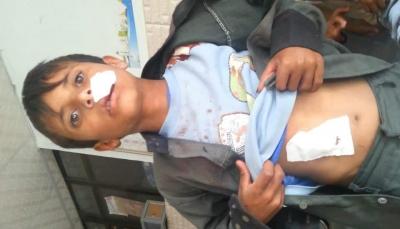 الضالع: إصابة ثلاثة أطفال جراء انفجار مقذوف بالقرب من موقع للمليشيات بدمت