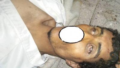 إب: مقتل شقيقين في السبرة والعثور على جثة مجهول في الظهار