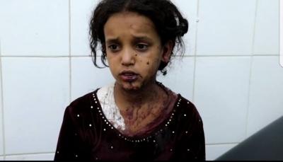 """مقتل وإصابة أربعة أطفال بقذيفة حوثية على أحد الأحياء شرق """"مأرب"""""""