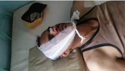 إب: قتلى وجرحى بينهم مسؤول أمن حوثي ونجله في مواجهات مع مسلحين قبليين