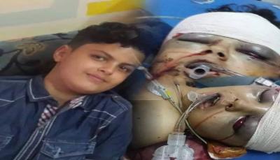 بسبب كرة قدم وقعت عليه.. مسلح حوثي يطلق النار مباشره على طفل بمدينة إب