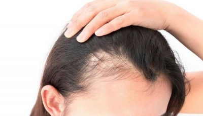 تعرف على ست بدائل طبيعية لمحاربة تساقط الشعر