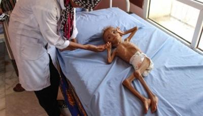 اليونيسيف: 20 مليون يمني بحاجة إلى الرعاية الصحية