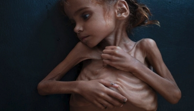 نيويورك تايمز: رحيل الطفلة التي فتحت عيون العالم على مأساة اليمن