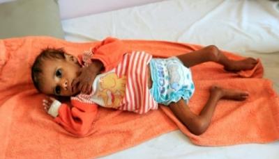 """اليونيسف تصف اليمن بـ """"جحيم حي"""" وتطالب بوقف الحرب"""