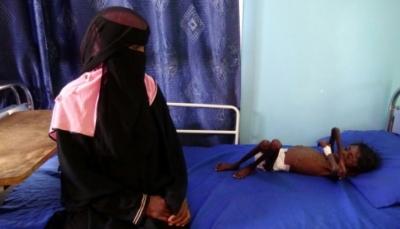 مسؤول أممي: الأزمة الإنسانية في اليمن الأسوأ ويمكن أن تتحسن في حال احراز تقدم في المشاورات
