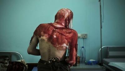 """تحقيق لـ""""أسوشيتد برس"""" يستعرض مآسي التعذيب الوحشي في سجون المتمردين الحوثيين (ترجمة خاصة)"""