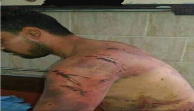 """قوات إماراتية تختطف شابا وتعرضه للتعذيب الوحشي في سجونها السرية بـ""""عدن"""""""