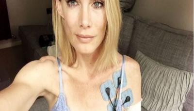 ممثلة فقدت يدها أثناء تصوير مشاهد خطيرة.. كيف تم تعويضها؟