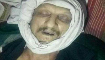 وفاة طبيب أوزباكستاني في سجون الحوثيين بإب