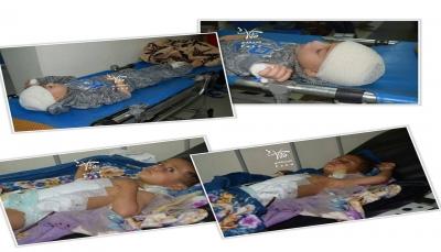 تعز: إصابة ثلاثة أطفال بانفجار مقذوف من مخلفات الميليشيا في صبر الموادم