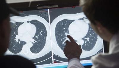عالم بريطاني يكشف عن سبعة أعراض رئيسية للسرطان