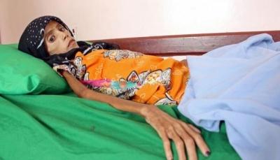 فتاة بعمر 12عام تعاني سوء التغذية وصل وزنها 10 كيلو تلخص تأثير الحرب في اليمن