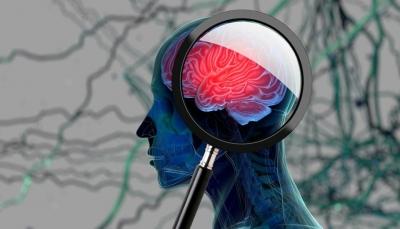 دراسة حديثة: النسيان دليل على الذكاء وليس الغباء