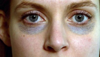 لماذا تنشأ الهالات السوداء تحت العينيين وما علاجها؟