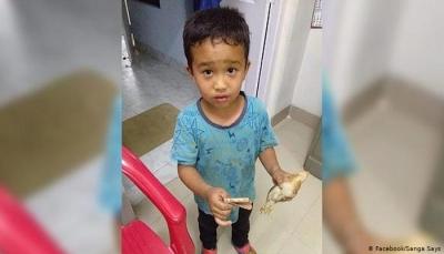 طفل يدهس بدراجته فرخ دجاج بالخطأ ويهرع به إلى المستشفى