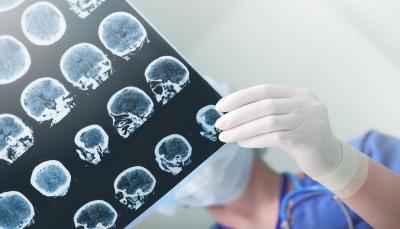 تعرف على 7 أشياء تزيد من خطورة الإصابة بالسكتة الدماغية