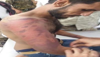 مسؤول بالمهرة يكشف عن تعرض شاب للتعذيب على يد قوات موالية للإمارات