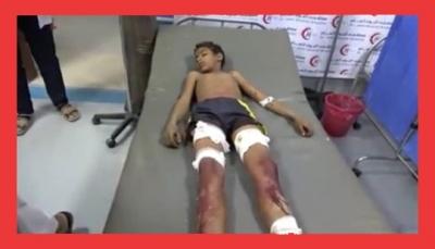 مقذوف حوثي يقتل طفل ويصيب شقيقة في الحديدة