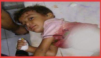 ميلشيات الحوثي تقتل امرأة وتصيب جميع أفراد أسرتها بقصف على منزلهم بالحديدة