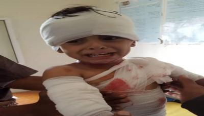 """البيضاء: إصابة طفلين في قصف حوثي على إحدى قرى """"الزاهر"""""""