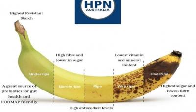 تعرف على فوائد الموز الكبيرة تبعاً لألوانه